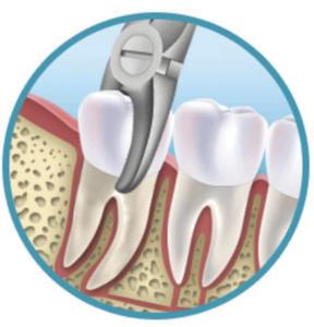Стоматологическая хирургия Уфа